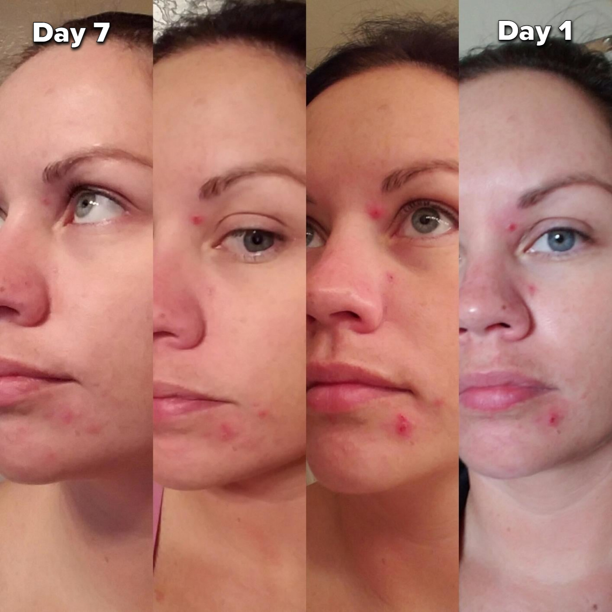 reviewer photo showing four pictures of red pimples gradually fading