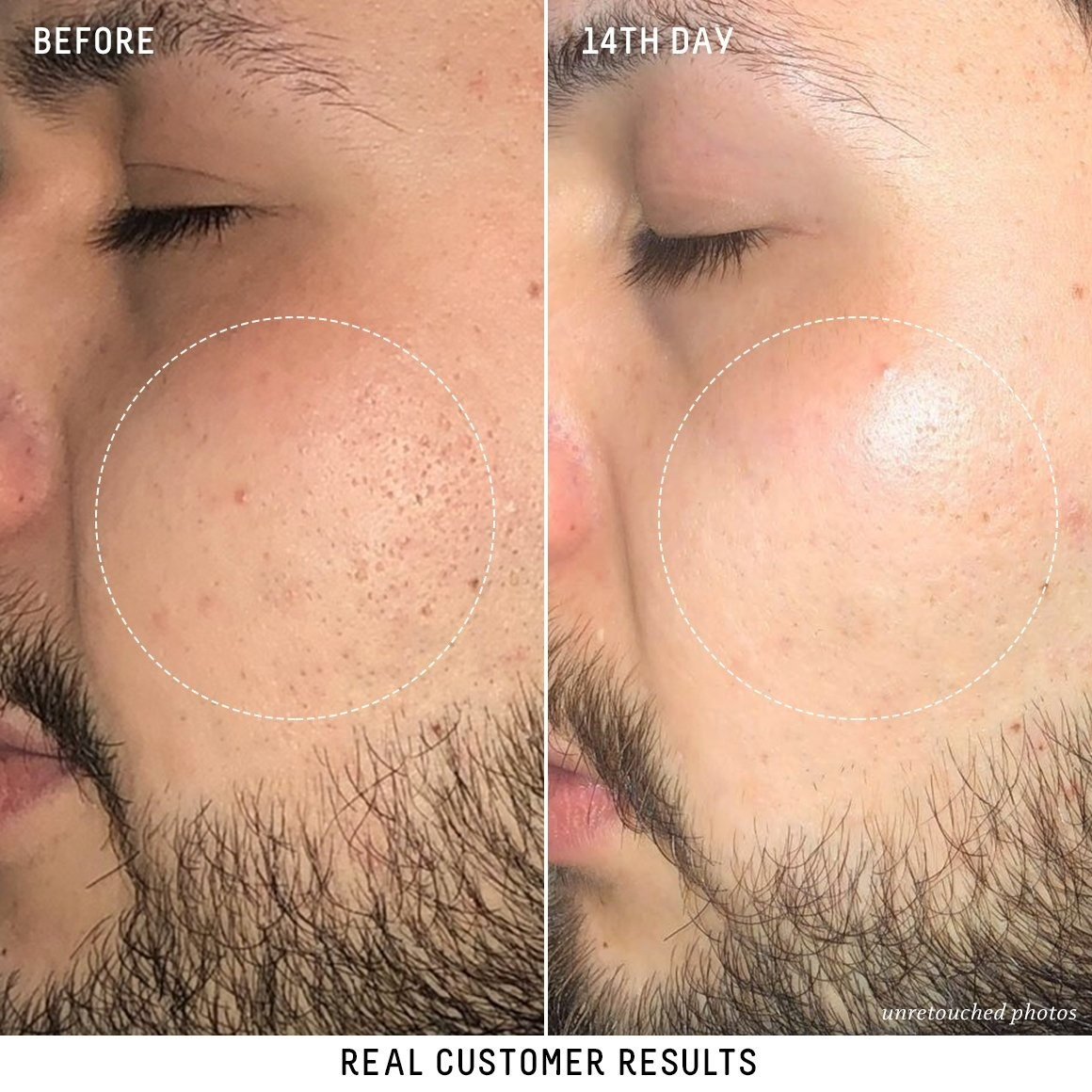 before of someones skin with noticeable pores and discoloration and an after photo of less noticeable pores and more even skin tone