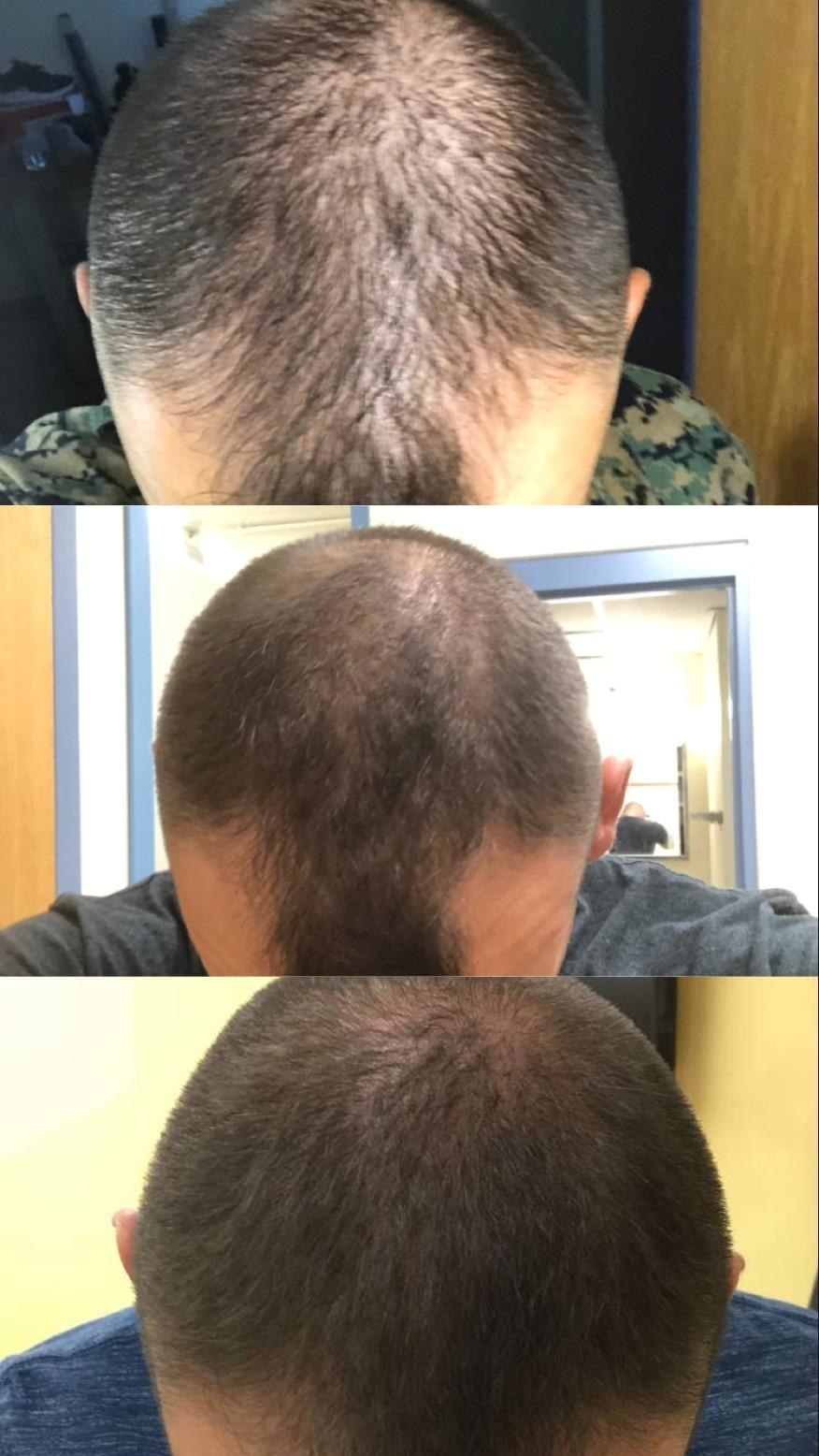 a photo showing someone going from balding to thicker hair