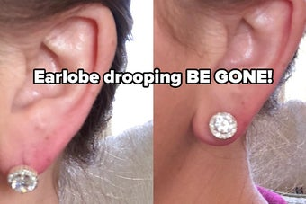 before and after reviewer images: the before shows an earlobe drooping with the weight of a stud earring and the after shows the same earlobe lifted using the magic bax earring lifters