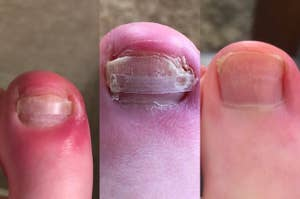 A customer review photo showing their toe before, during, and after using the treatment
