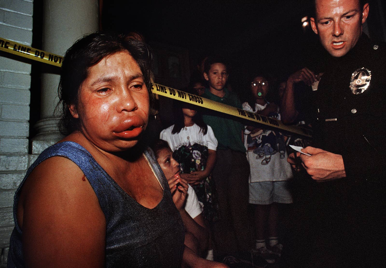 A woman with a fat lip who has been crying looks off in the distance as a crowd of children watch from behind police tape and a police officer looks on
