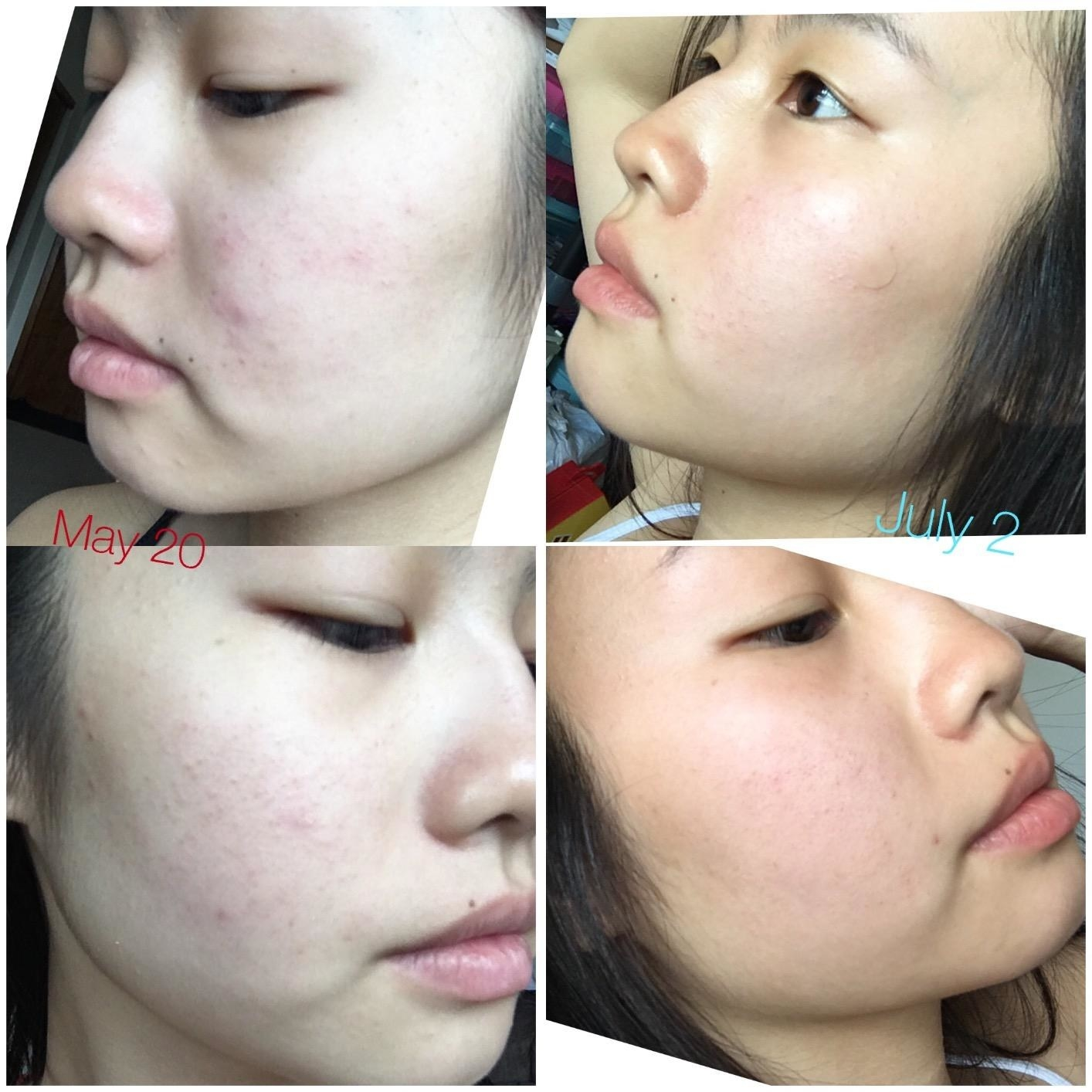 Reviewer's progression photos showing the serum reduced redness and breakouts on their face