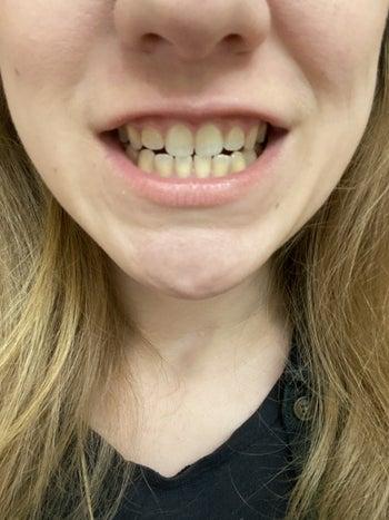 BuzzFeed editor with yellow on teeth