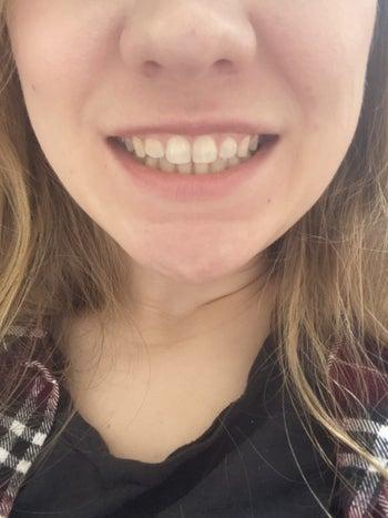 Same teeth but much whiter