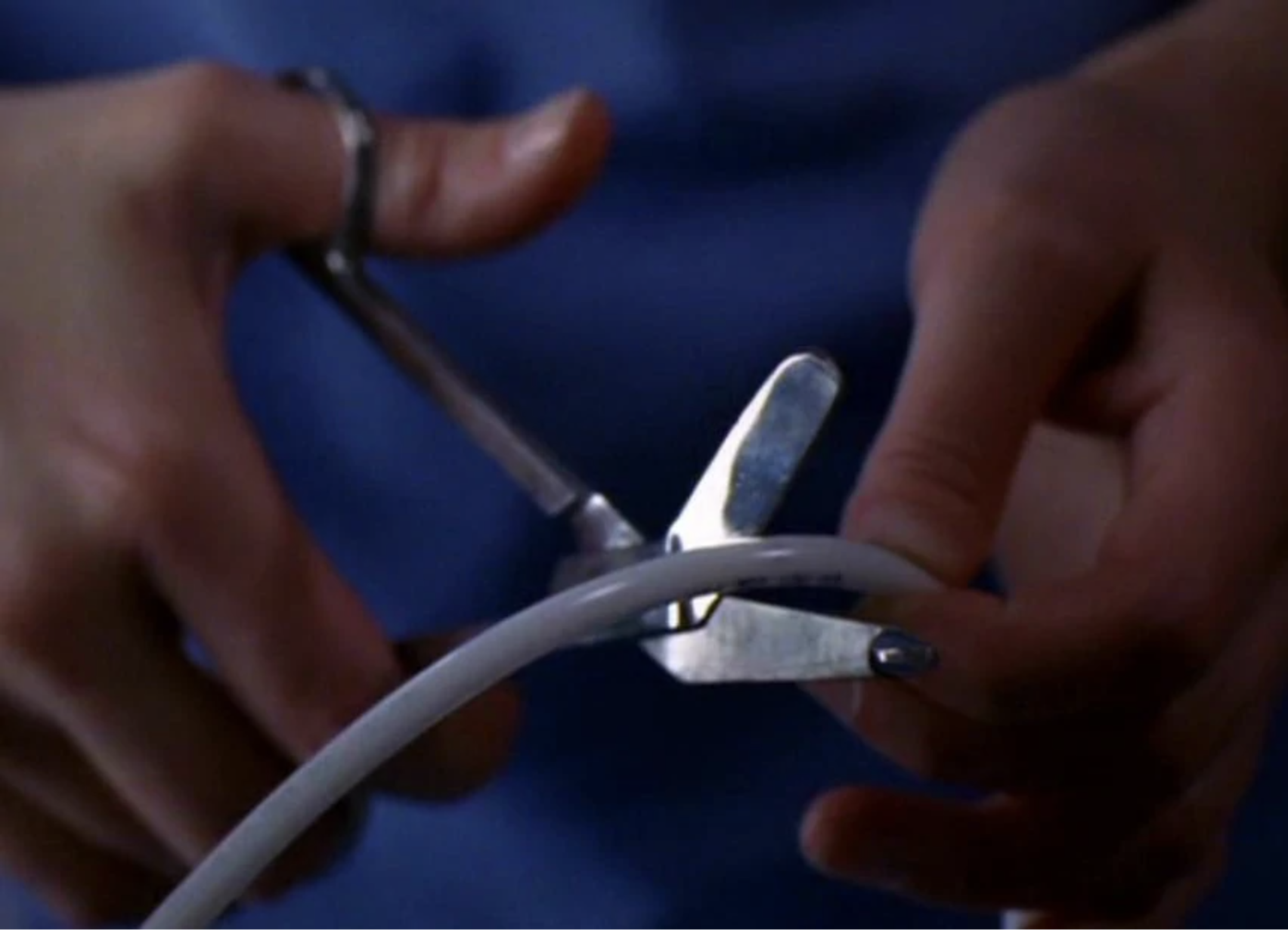 A LVAD wire in a hospital