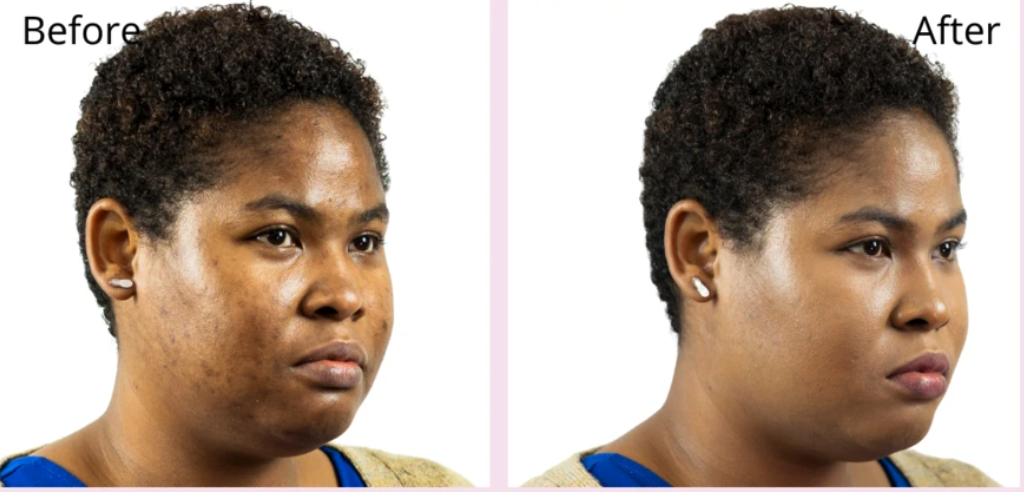 before/after of model wearing foundation with after showing smoother skin