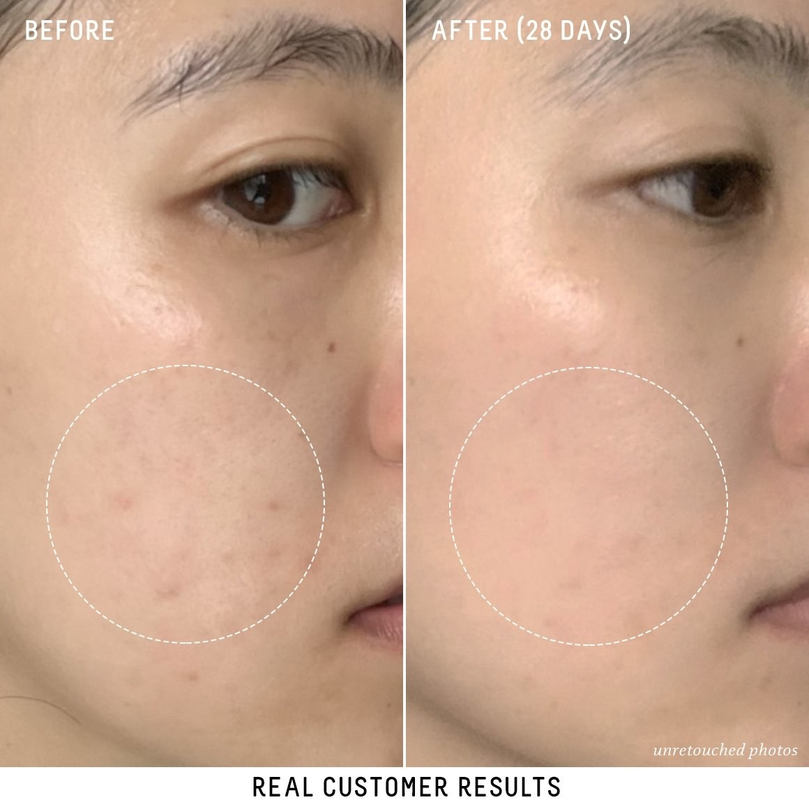 customer's before/after pic with before photo showing dark spots, possibly left behind from acne. after photo shows the spots have significantly faded.