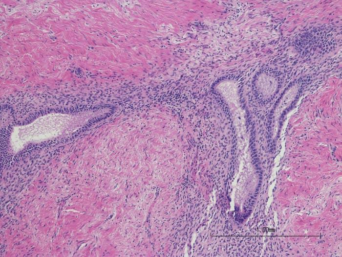 An image of endometriosis lesions