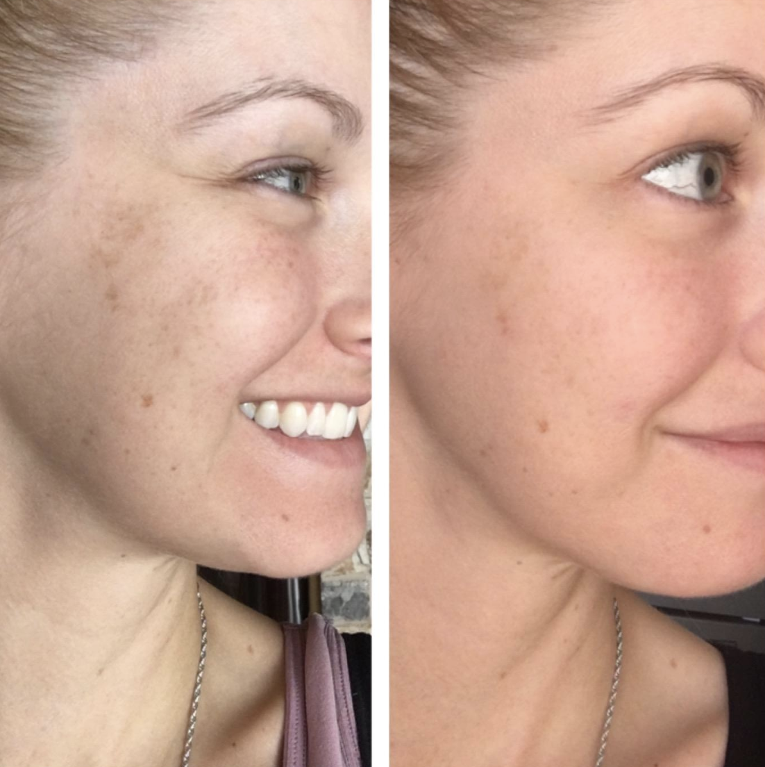 Before and after image of reviewer with more refreshed skin after use