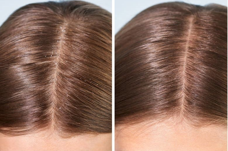 A model's head before and after using the shampoo with flakes before and a clear scalp after