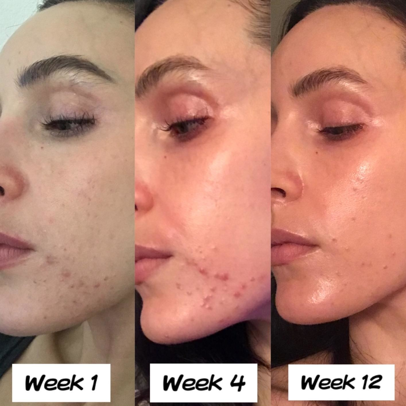 Reviewer photo showing results of using Differin gel over 12 weeks