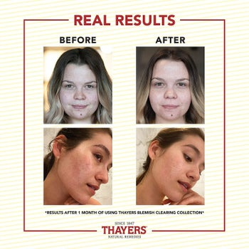 Before-and-after results of using Thayers Blemish Clearing Pads for one month