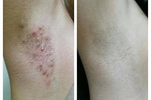 An armpit with bumps before and no bumps after