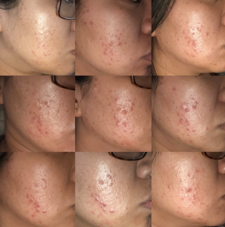 the reviewers progress throughout three and a half months using the gel