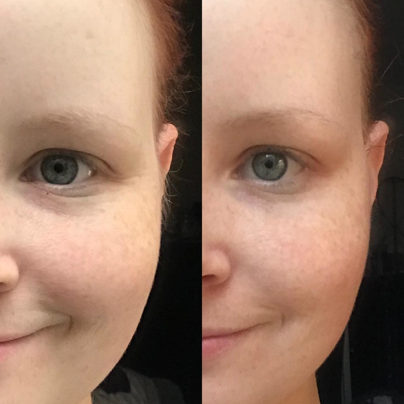 reviewer photo showing their under-eye area before and after using the Zombie mask