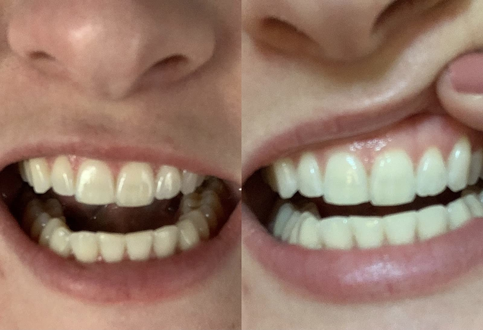 reviewer before and after showing their teeth visibly whiter after using the pen