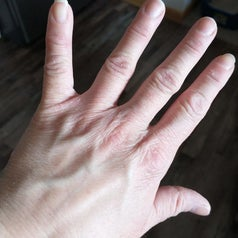 a reviewer's healed hands