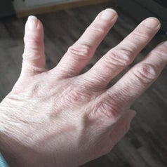 a reviewer's dry cracked hands