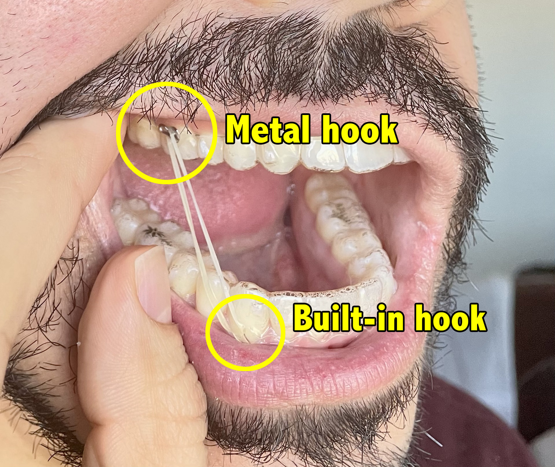Pablo's mouth, which has a rubber band connecting his top and bottom teeth with the use of hooks