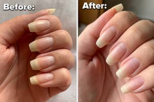 A before and after image of a person's nails with and then without overgrown cuticles