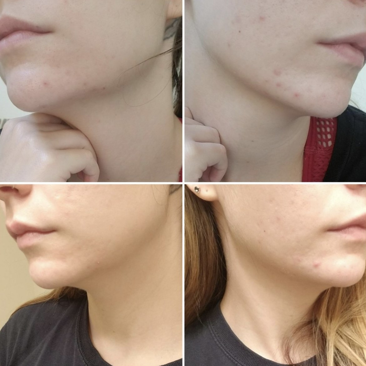 before and after one week of using the acne treatment