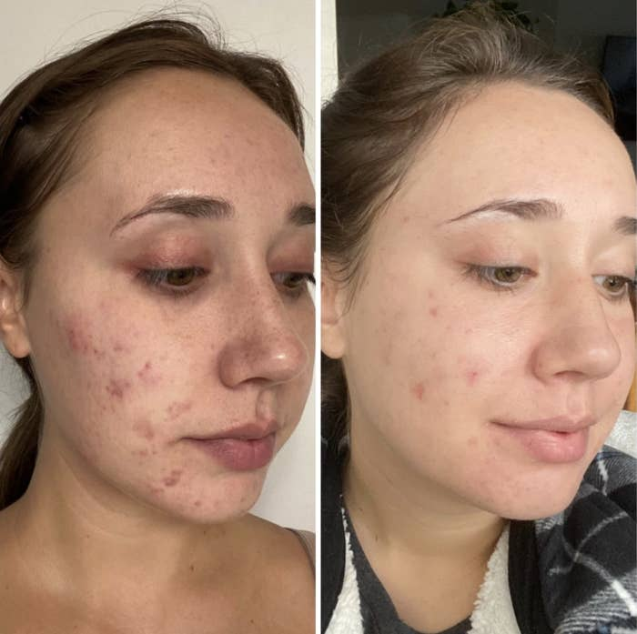 a before and after shot of a person using differing gel for acne