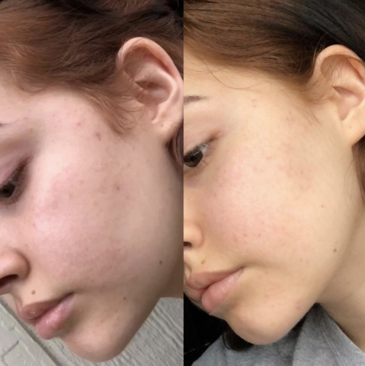 a before and after photoset of a persons face along with the product