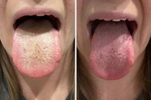 A reviewer's white tongue before using a tongue scraper // Their pink tongue after using the scraper