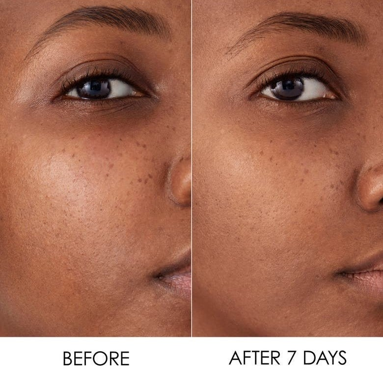 A model's face before the serum and after using it a week, with their skin looking more even