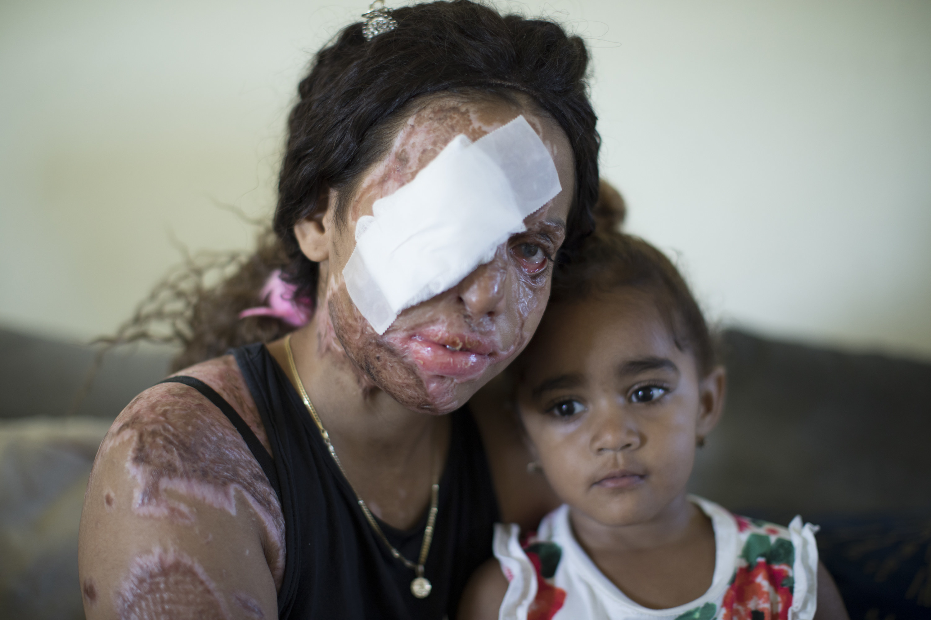 A woman with a bandaged eye and scars on her face and arms sits beside her young daughter