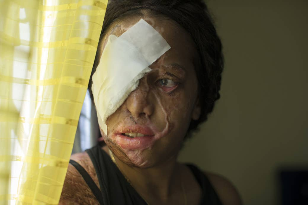 A woman with scars on her face and a bandage over one eye looks out of frame through a window curtain