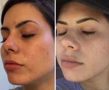 Before and after showing the serum helped get rid of breakouts on reviewer's cheek