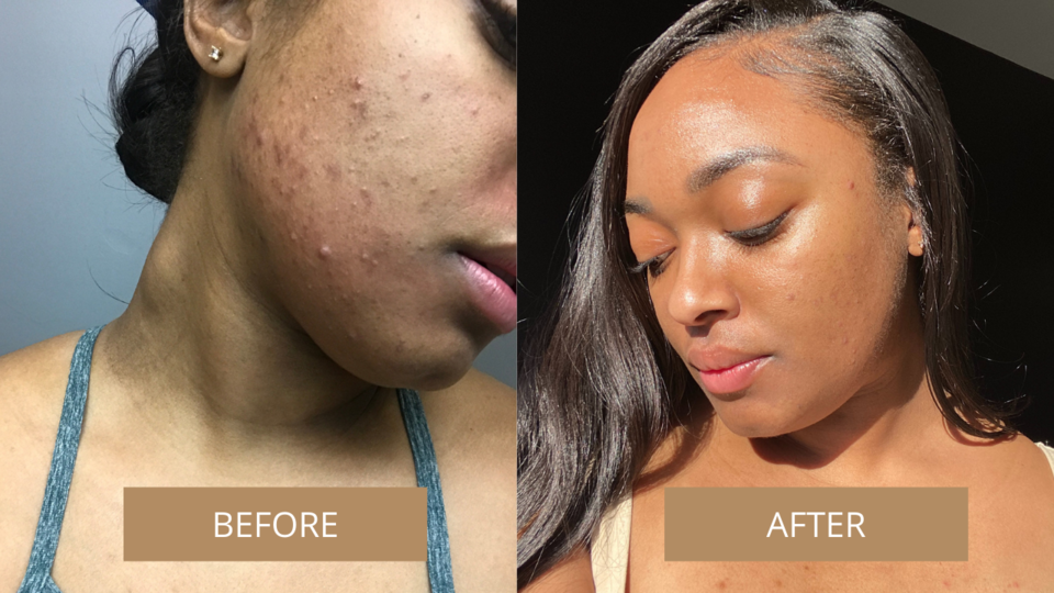 Before and after showing the oil helped get rid of user's red, irritated cheek breakouts