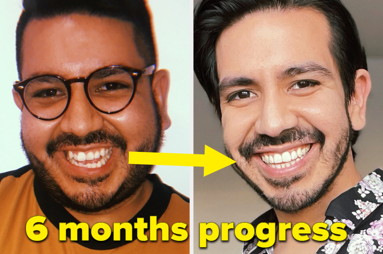 Pablo's tooth progress in six months, in which his teeth straightened out