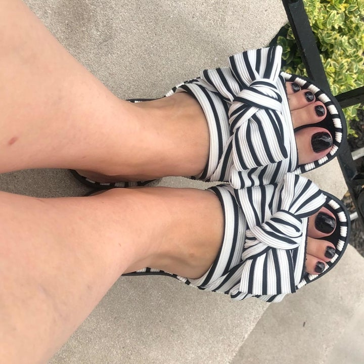 reviewer wearing the black and white stripe open toe slides