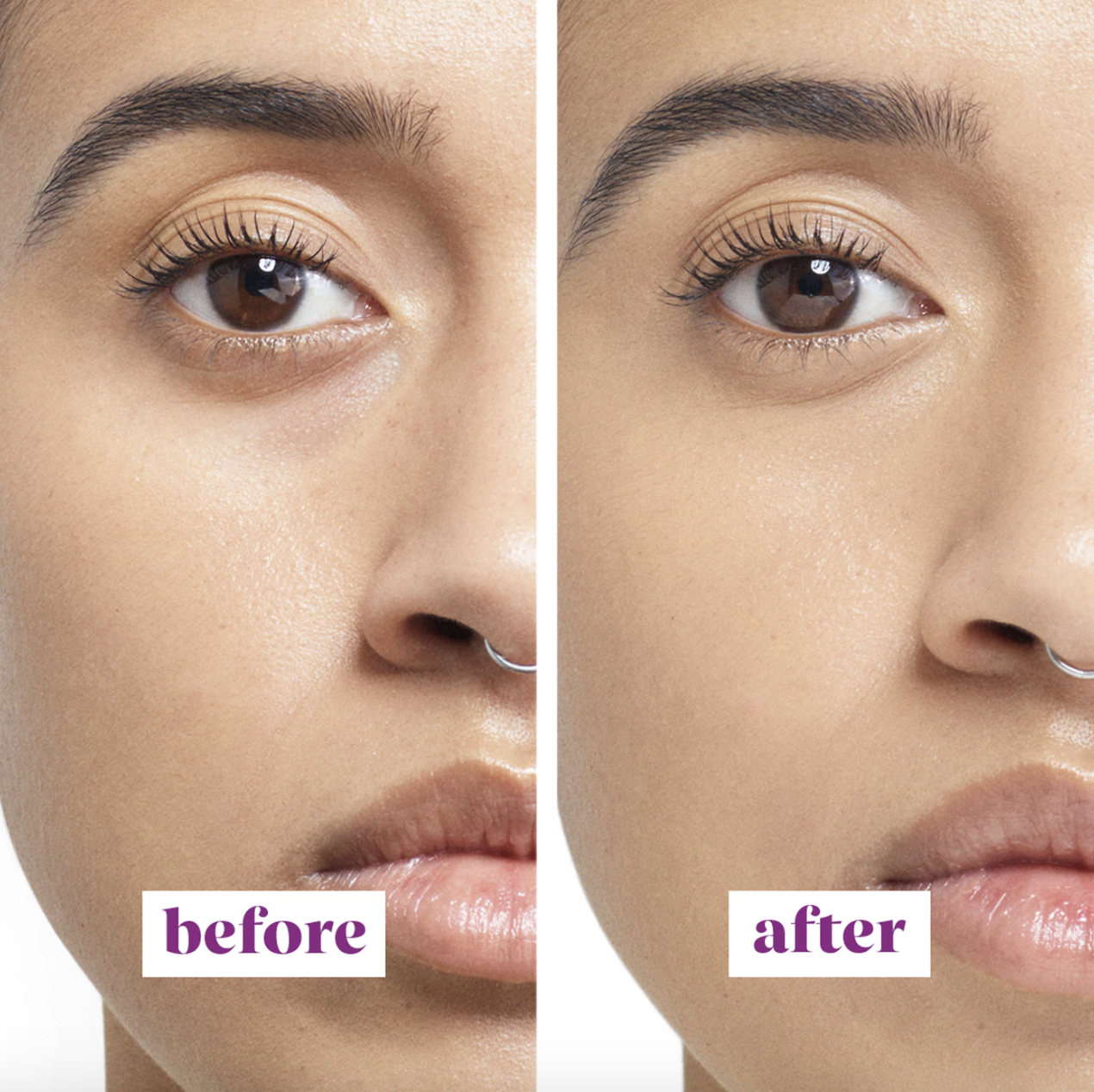 before and after photo of model with dark circles on left and visibly reduced dark circles on right