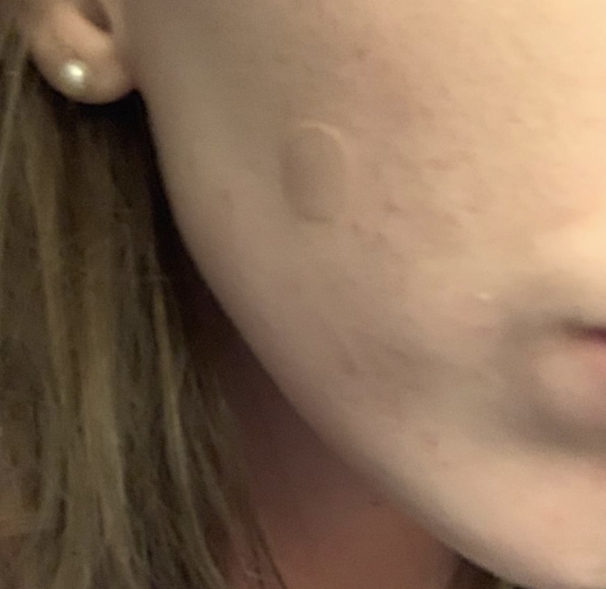 A person with a pimple patch on their cheek