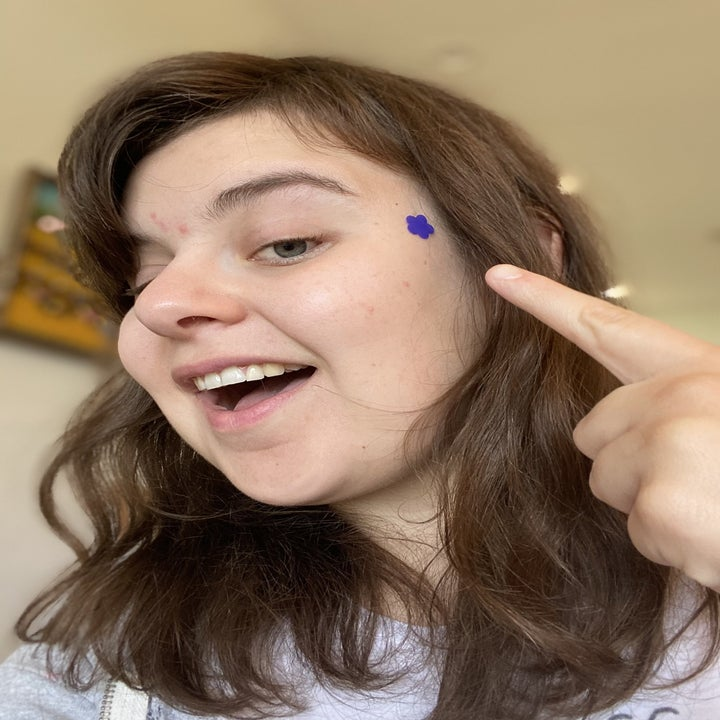 BuzzFeed editor pointing to purple flower shaped patch on side of her head