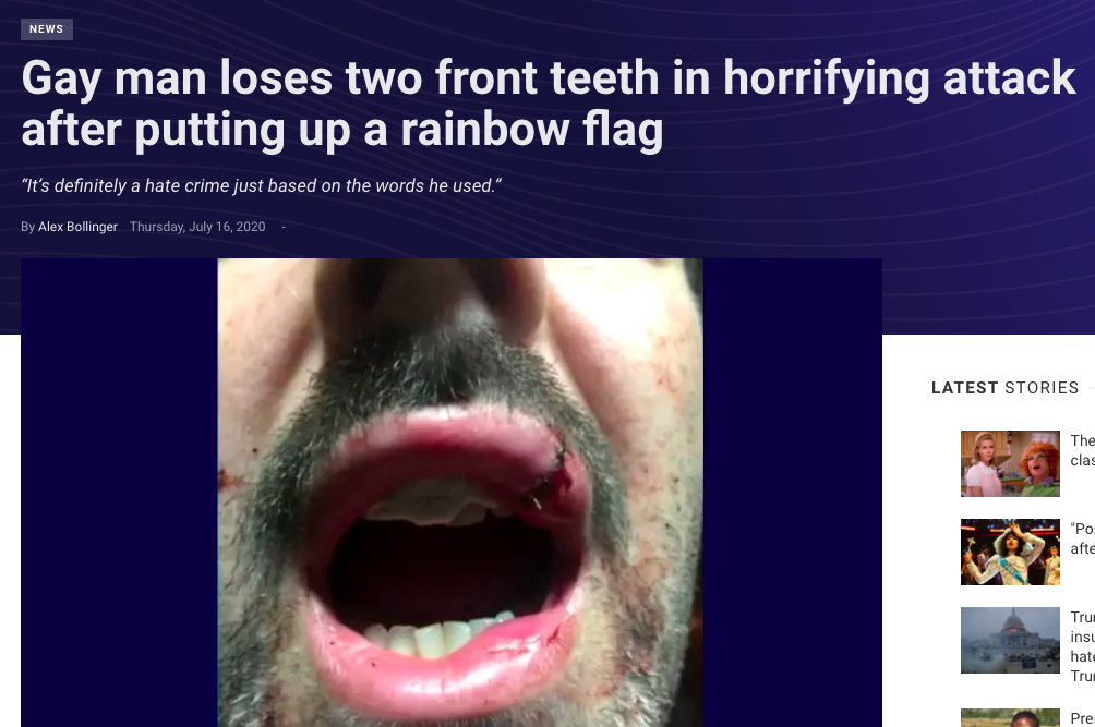 News headline: Gay man loses two front teeth in horrifying attack after putting up a rainbow flag
