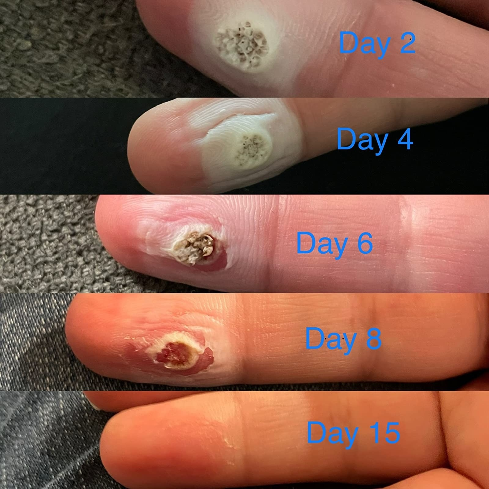 reviewer showing their wart slowly going away over 15 days of using Compound W