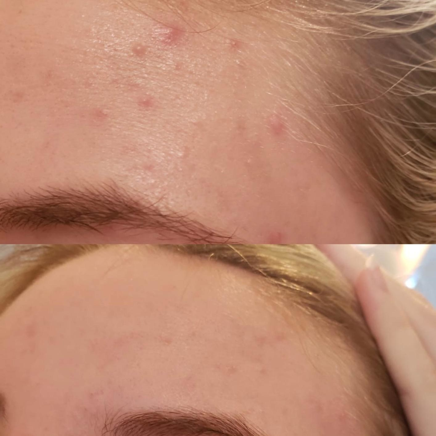 reviewer before and after photos showing their forehead acne cleared up after using the acne patches
