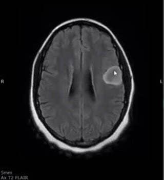 Theandra's brain scan