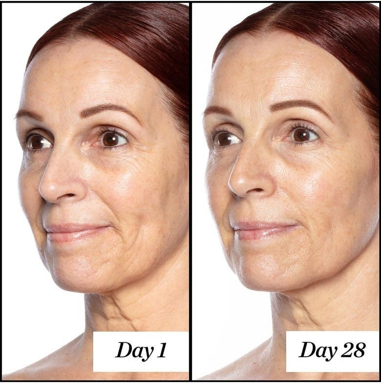 A model before using the serum / the same model after using the serum for 28 days