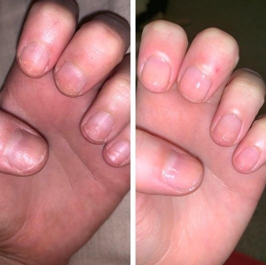 A reviewer before and after photo showing cracked nails and then soft, shiny nails