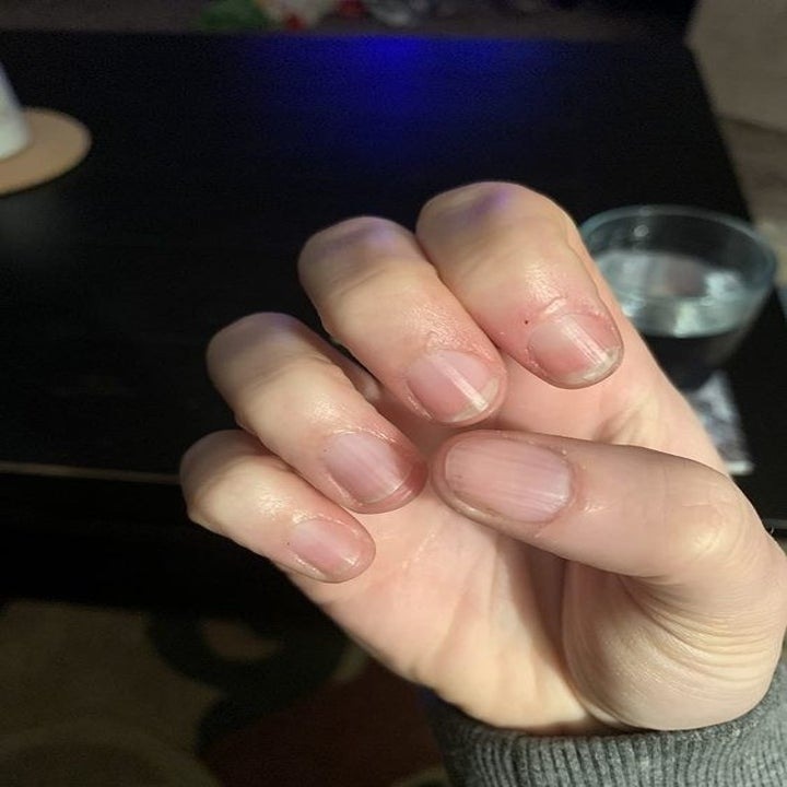 The same reviewer showing off their soft cuticles after using the serum
