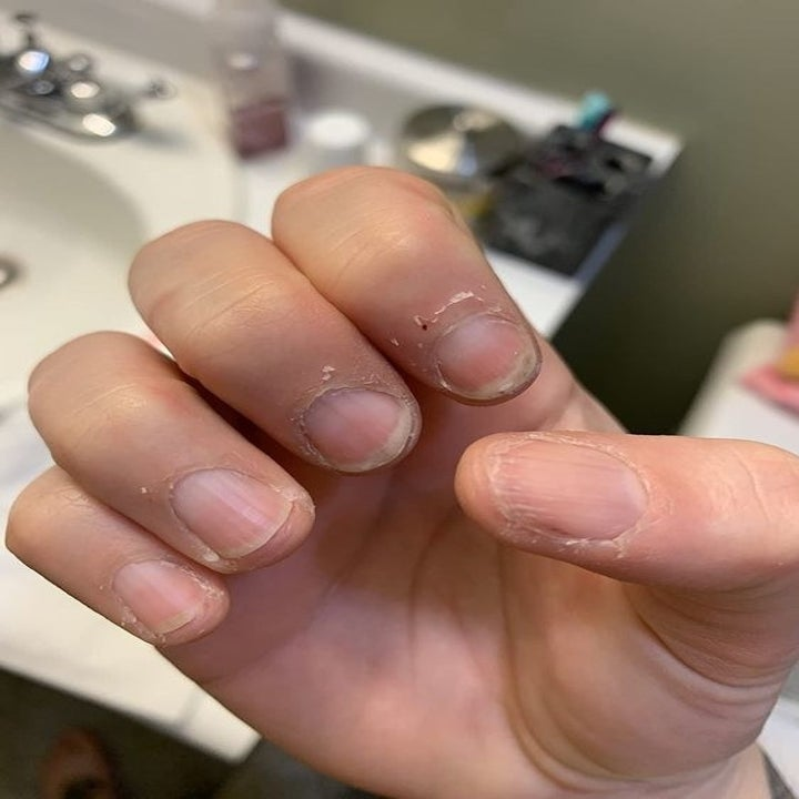A reviewer showing off their dry, cracked cuticles before using the serum