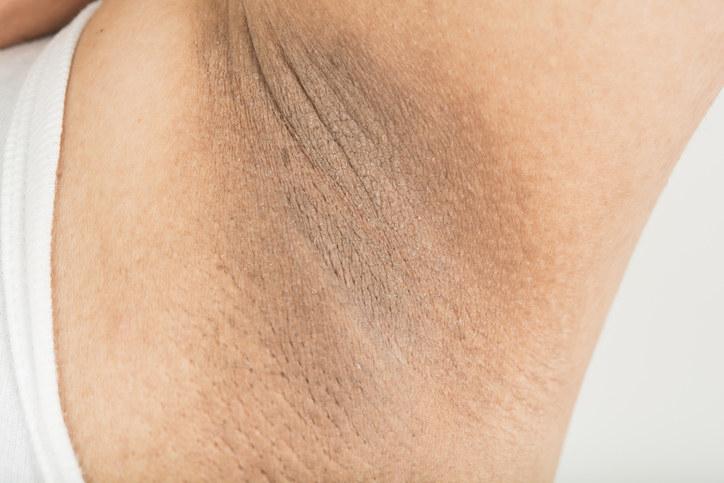 dark armpit skin