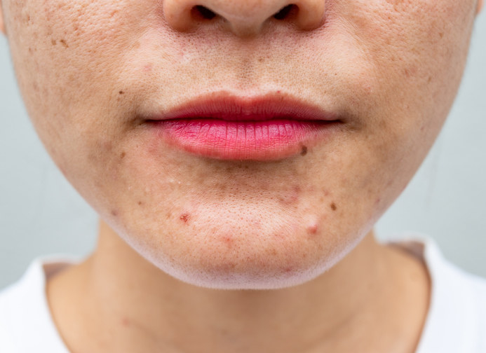 woman's chin spots