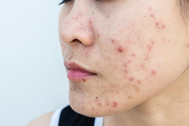 side profile acne bumps